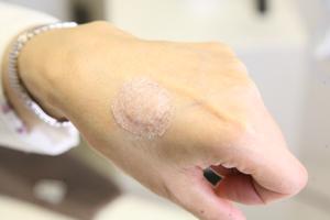化膿止めの軟膏を塗ってガーゼで保護して肌色のテープを貼る方法