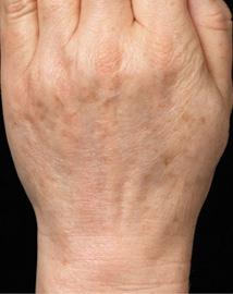 3回治療後老化肌が丸ごと入れ変えによる改善